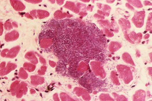 c0235466 spl infective myocarditis 525x350px