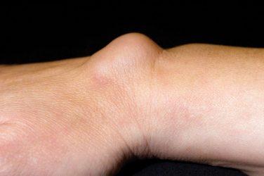 Symptom sorter – Hand and wrist swellings