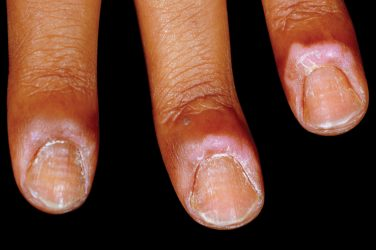 Medical arithmetic: losing cuticles, puffy eyelids, blistered lips