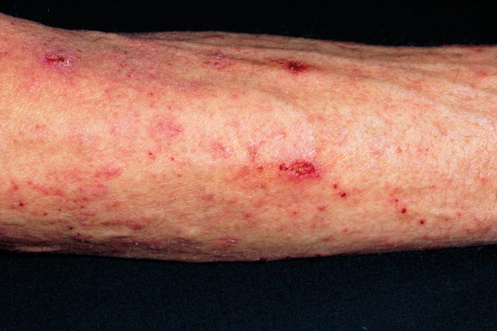 Scabies skin infection