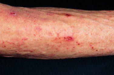 Medical arithmetic: skin infestations
