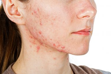 First-ever NICE acne guideline recommends mental health support