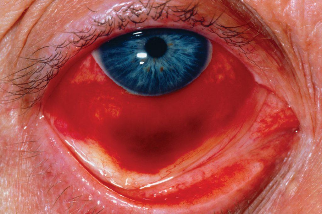 Conjunctival haemorrhage