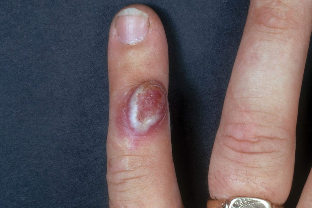 Orf disease, lesion on finger