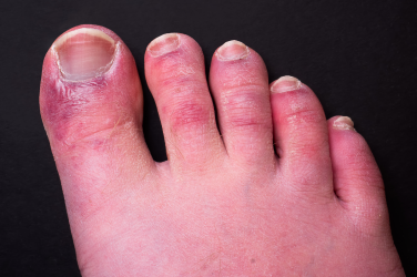 Study suggests immune system response behind 'Covid toe'
